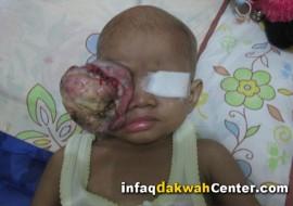 Dua Tahun Nuraini Menahan Sakit Tumor Mata. Cita-citanya Ingin Jadi Ustadzah. Ayo Bantu!!